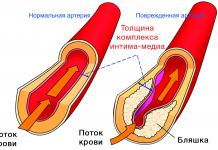 tolschina-kompleksa-intima-media